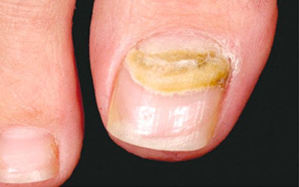 El método público del tratamiento del hongo entre los dedos de los pies